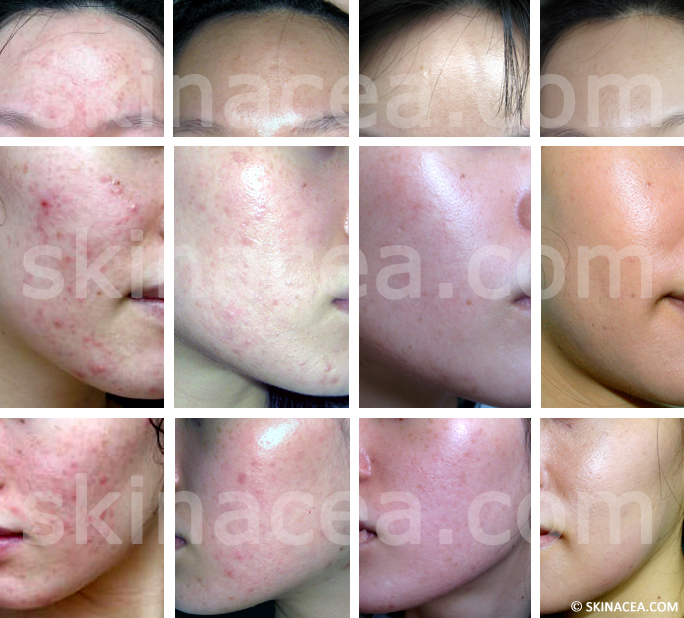 Before and after picture of my acne clearing