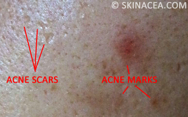 Question: What's the difference between acne scars and acne marks?
