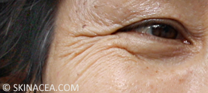 Preventing wrinkles and aging